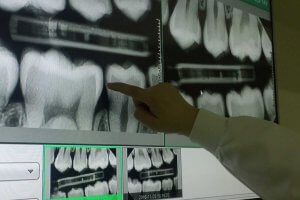 Dental X-Ray Video