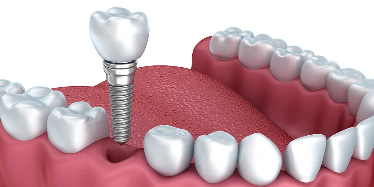Dental Implants in Easton