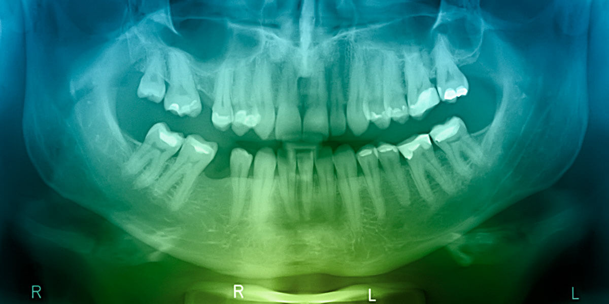 X-ray Image of Missing Tooth